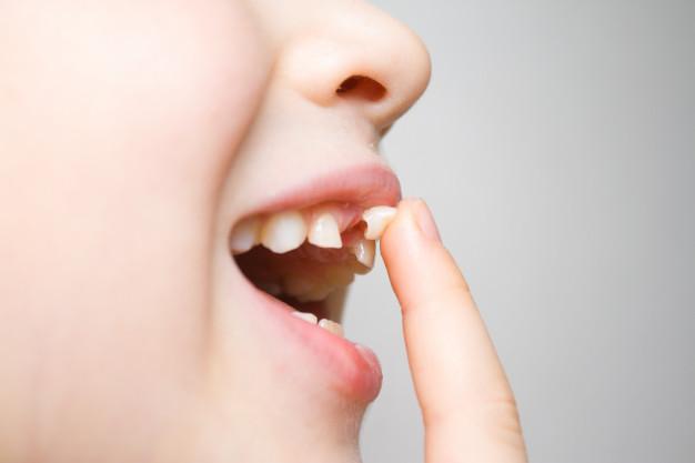 Denti da latte e denti permanenti: quanti sono e quando si cambiano